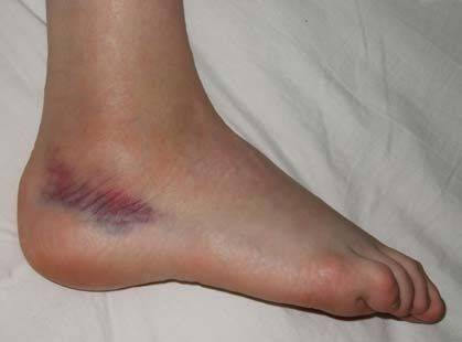 Sprained_foot